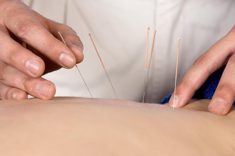 Acupuncture  San Francisco, CA